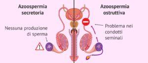Azoospermia secretoria e ostruttiva